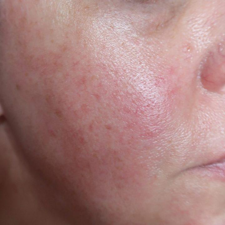 Medik8, Liquid, peptiden, huidverzorging, jonger, anti-age, vrouw, huid, beauty,