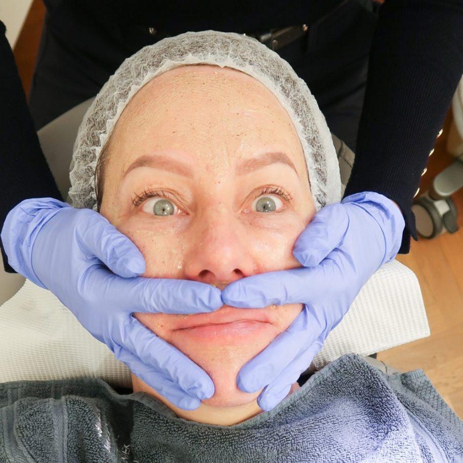 Huidverbetering, van Rosmalen, kliniek, skincare, huid, peeling, botox, Fillers, anti-age, aging, ouder, vrouw