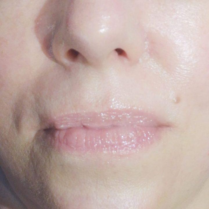 Utsukusy, hyalu-in, lipbehandeling, Scheveningen, nihna, Drachten, volle, lippen, lipfiller, natuurlijk