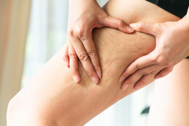 Cellulite, Collistar, crio, gel, putjes, benen, afslanken, mooi, benen, billen, beautysome, yustsome