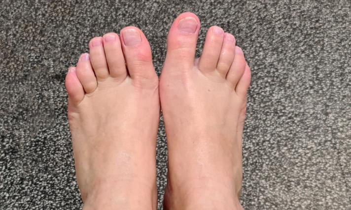 voeten, voetverzorging, pedicure, wraten, wratjes, eelt, likdoorns, nagels, ingegroeid, pijn, 50 plus, yustsome, blog, 3