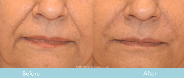 Juvederm for Smile Lines