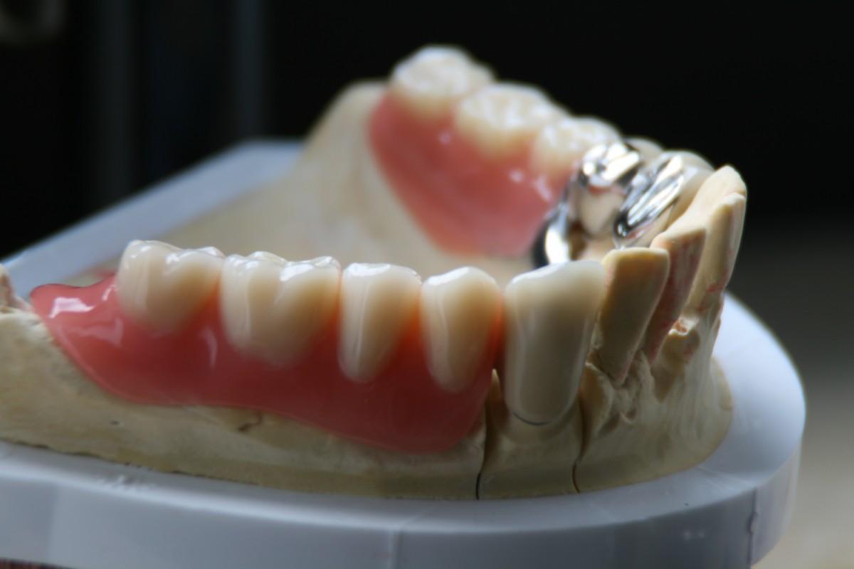 Teleskop geschiebe prothese zahnwerk drolshagen ihr zahnarzt