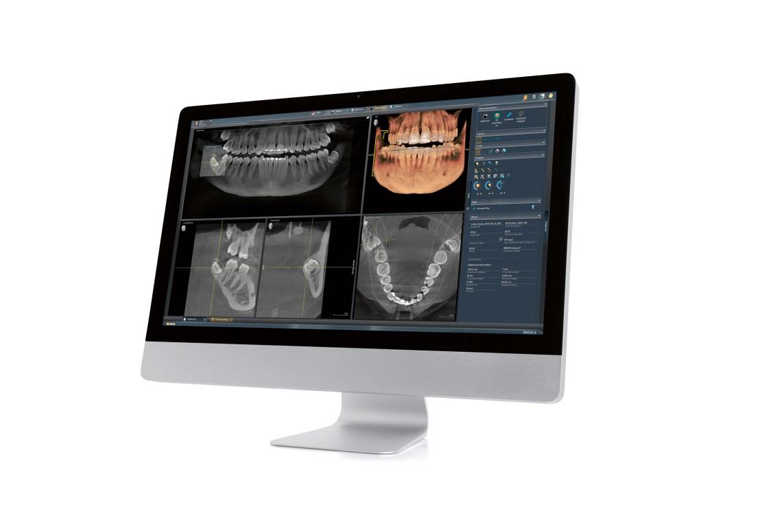 Ein Röntgenstrahler neuster Generation erlaubt uns die strahlungsarme dreidimensionale Abbildung des menschlichen Kiefers © Dentsply Sirona