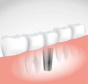 zahn implantat kosten und ablauf einer behandlung