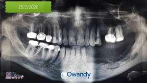 Osteomyelitis Panoramic