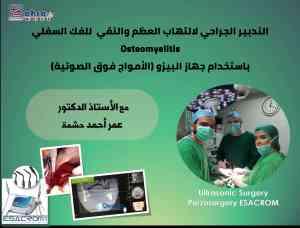 التدبير الجراحي لالتهاب العظم والنقي للفك السفلي Osteomyelitis باستخدام جهاز البيزو (الأمواج فوق الصوتية)