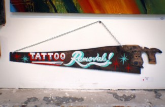 enleveur de tatouages