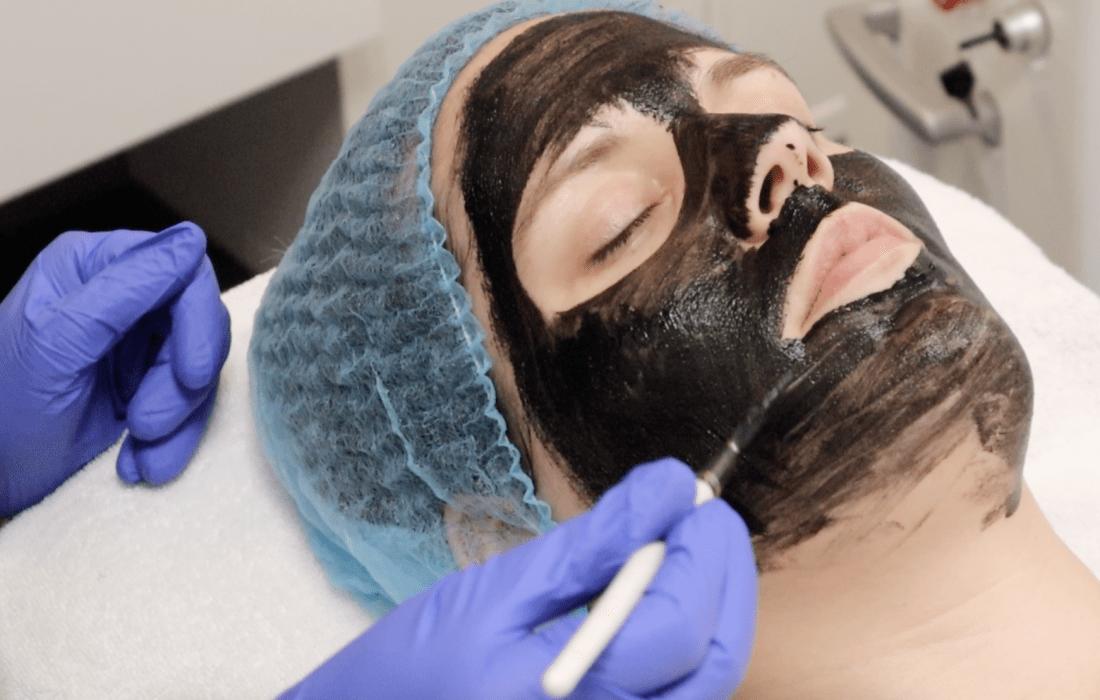Een Black Peel behandeling, wat is het?
