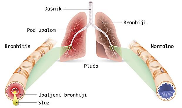 Bronhitis – Uzroci, simptomi i prirodno liječenje kod djece i odraslih