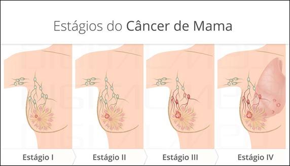 digitalmed_estagios-cancer-mama