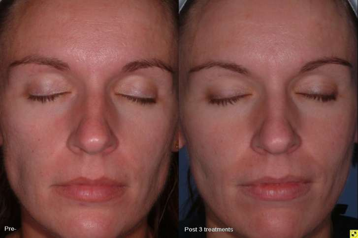 Fractional (Fraxel) Laser Skin Treatment in MN | Zelskin com