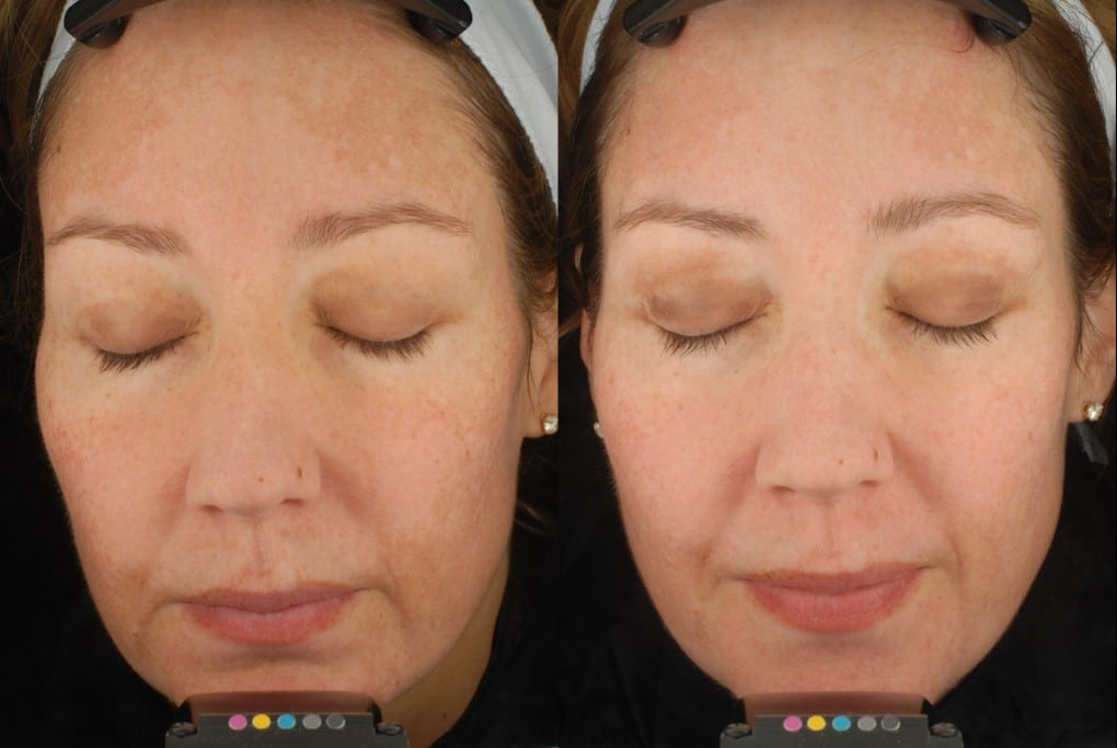 twin cities peels Facial