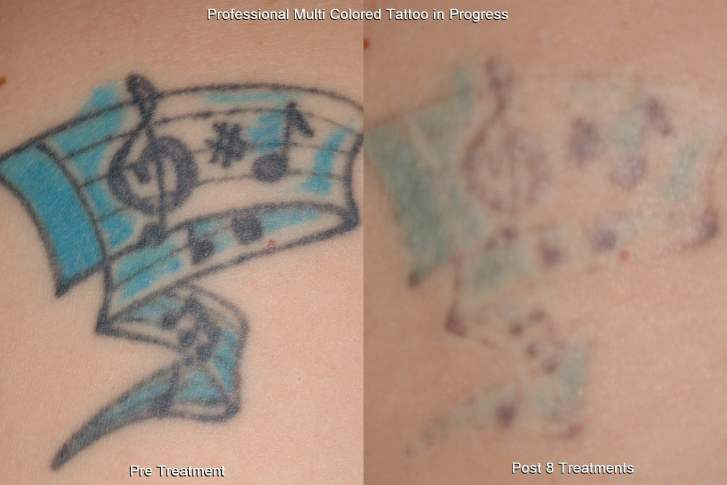 Laser Tattoo Removal In Mn Zelskin Com