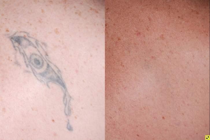 Laser Tattoo Removal in MN | Zelskin com