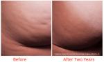 cellfina treatments minneapolis