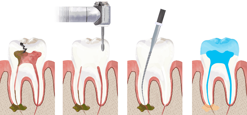 Zen Dental-Root-Canal