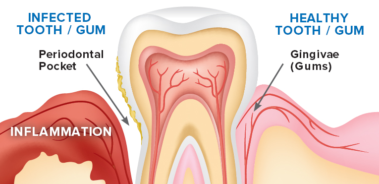 Zen-Dental-Gum-disease-treatment