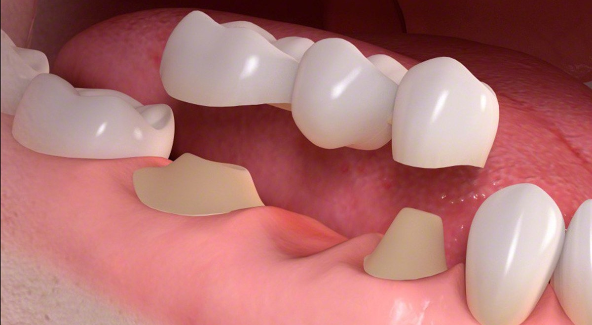 dental_bridge_sm