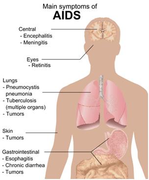 gejala AIDS