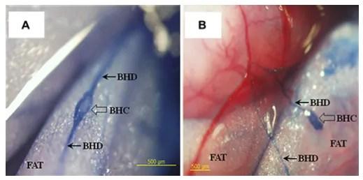 Fig. 2 - Immagini colorate con Trypan Blue del Primo Vascular System all'interno di tessuto adiposo. (A) Primo Vessel Node (corpuscolo di Bong Han, BHC) e Primo Vessel Duct (dotto di Bong Han, BHD) attorno all'intestino tenue del ratto, (B) il Primo Vessel Node e il Primo Vessel Duct nei pressi del piccolo intestino dello stesso ratto [tratto da: Stefanov M e Kim J, J Acupunct Meridian Stud 2012; 5(5): 193-200].