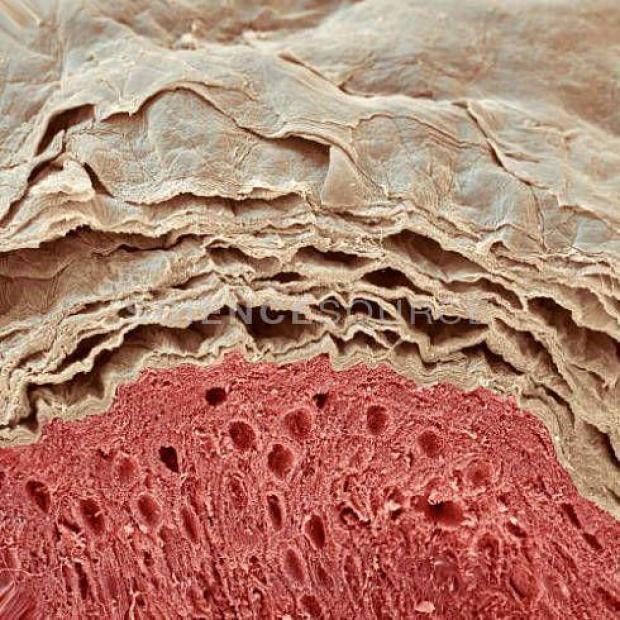 billion skin flakes