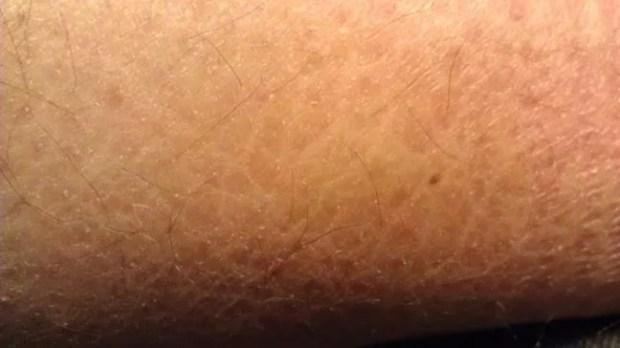 billion skin flakes2