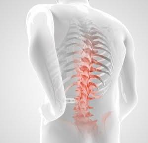 Hernia de disc. Intervenţie chirurgicală VS. Kinetoterapie
