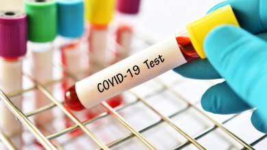 Photo of Covid-19 cases surpass 40 million