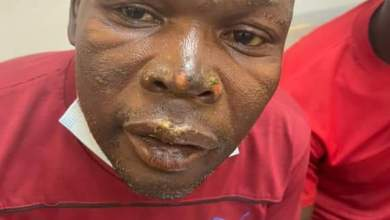Photo of Cop says MDC Alliance activist burnt with acid must stay in prison