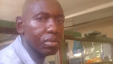 Photo of Injured police officer appeals for US$1,500 urgent help