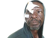 Man Assaulted By Lover's Ben 10, Flees