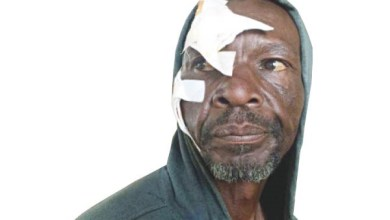 Photo of Man Assaulted By Lover's Ben 10, Flees