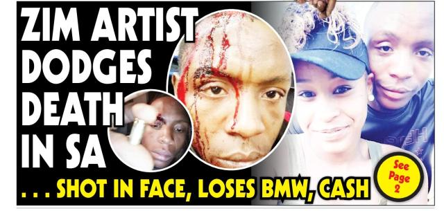 Zim Artiste Shot On The Face, Robbed In South Africa
