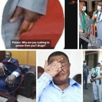 Swollen Hands: Is Mnangagwa Going The Chiwenga Way?