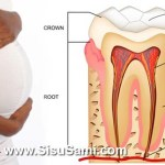 Bleeding Gums and Pregnancy