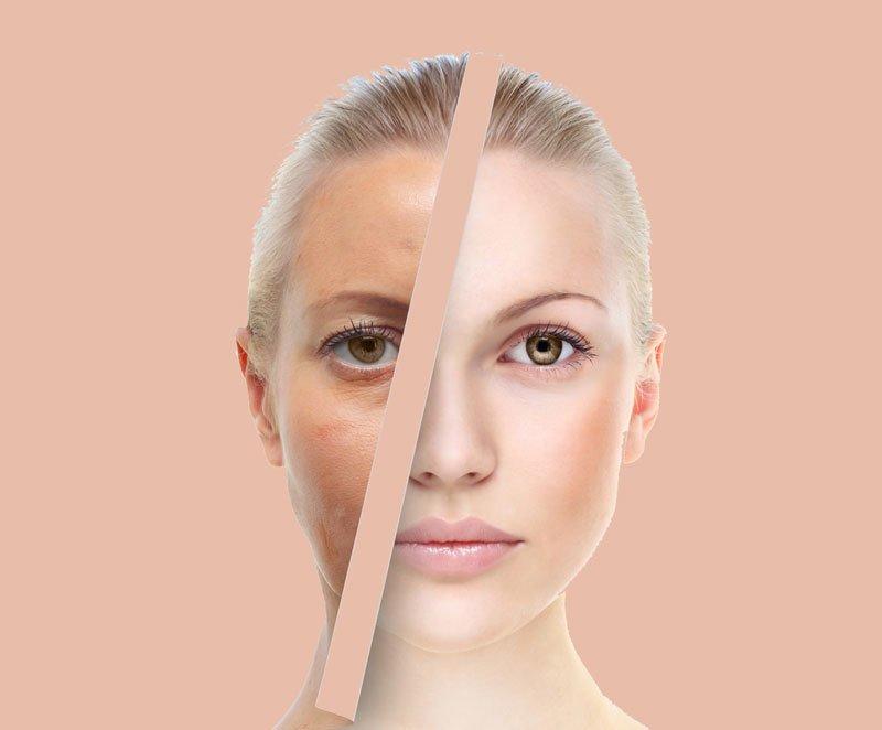 Druskos-veido-kauke_Zinius-svetaine Druska veidui! Nuostabus odos atjauninimas