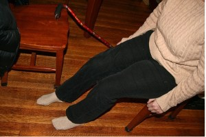 Post Knee Arthroplasty