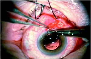 Cataract Surgery Complications