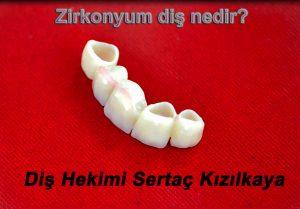 Zirkonyum diş kaplama implant üzerine uygulanabilir.