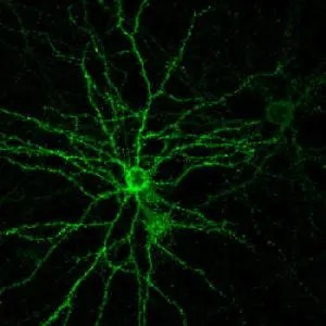 A neuron cultured for the study. Via Yale University.