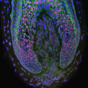 For the first time, researchers have been able to take human dermal papilla cells (those inside the base of human hair follicles) and use them to create new hairs. Image: Claire Higgins/Christiano Lab at Columbia University Medical Center.