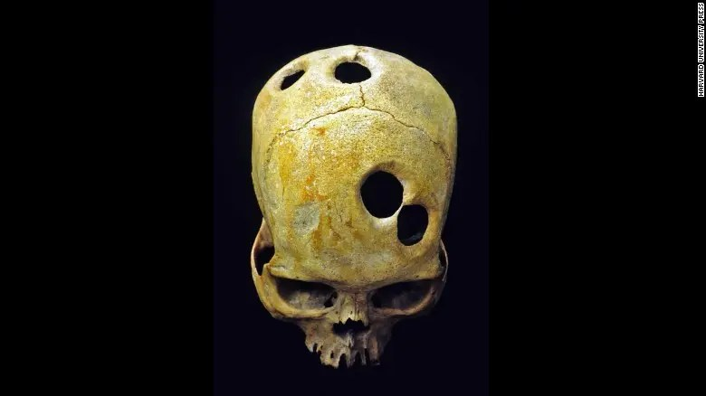 Ancient Inca surgeons carefully made perfect holes in the skulls of their patients. Some would survive, but why they had to make this many is a mystery.