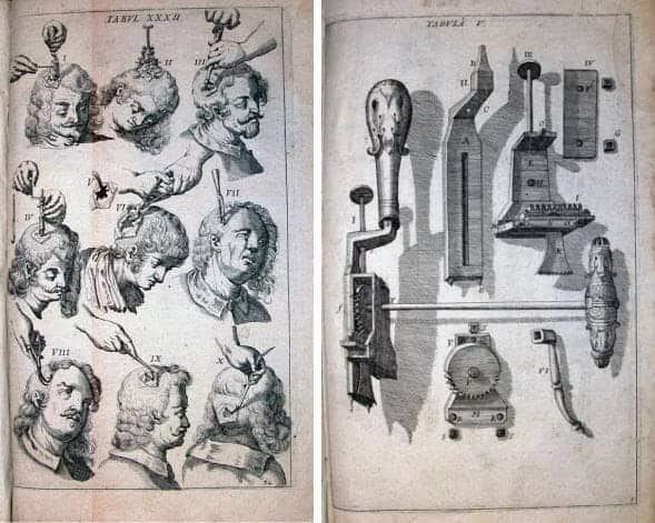 Two prints from Armamentarium chirurgicum, by Johannes Scultetus (1655), showing how trepanation was performed (left) and a set of trepanation instruments (right).