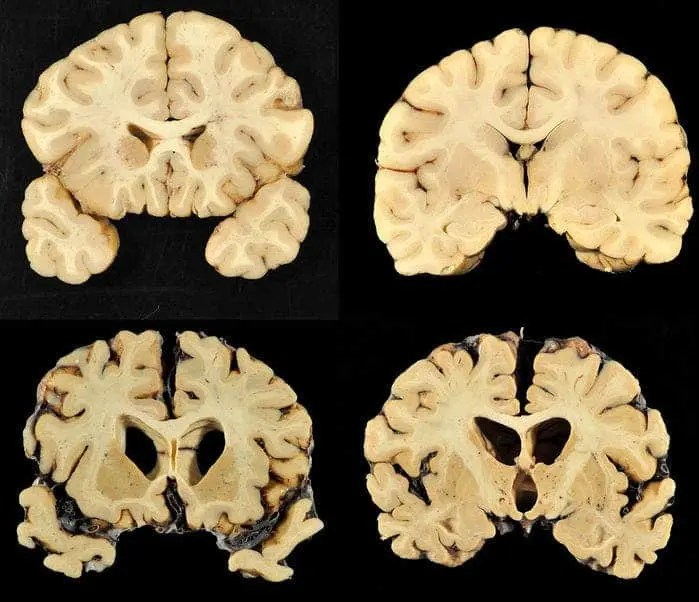 Top: normal healthy brain. Bottom: the brain of Greg Ploetz who played   defensive tackle for the Texas Longhorns and who suffered from severe chronic traumatic encephalopathy. Credit: Boston University Photography.