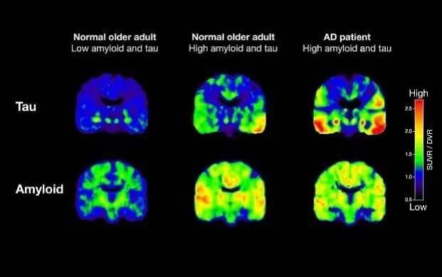 Brain scans showing the differing distribution of amyloid plaques and tau tangles in patients with Alzheimer's disease. Credit: University of California.