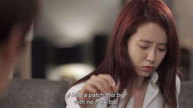 Oh Jin Hee - I had a patch this big with no hair