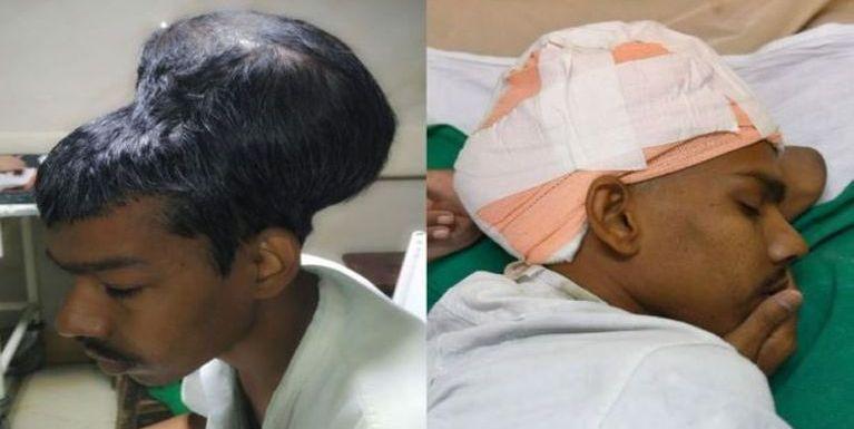 India gamsung aom Doctors te'n pasal luzangbawk golpikhat atkhiatsak
