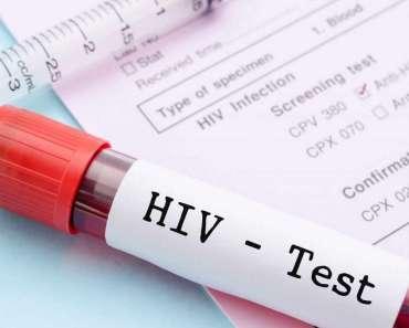 Un nuevo dispositivo diagnostica el VIH en minutos y no días