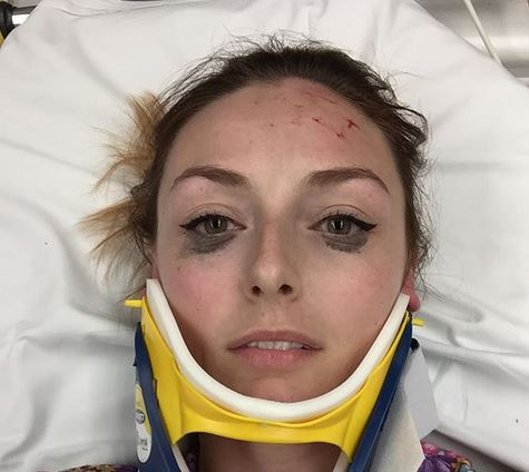 Una ragazza americana pubblicizza un eyeliner… dopo un incidente stradale